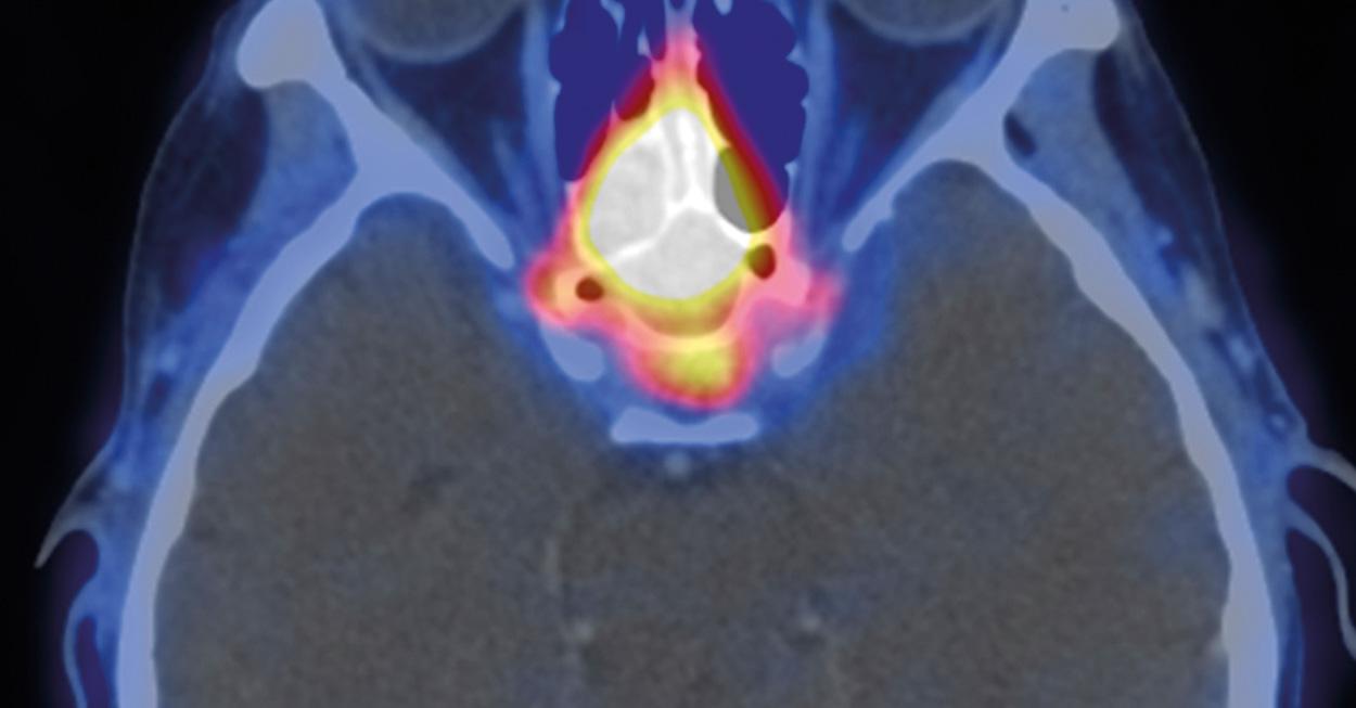 Molekulare Neuro Onkologie Hertie Institut Fur Klinische Hirnforschung
